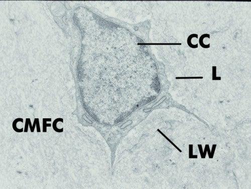 Cementogenesis cementum cells deutsch diagram 2 school for 3501 terrace street pittsburgh pa 15261