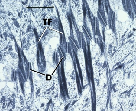 Gingival epithelium diagram 6 school of dental medicine for 3501 terrace street pittsburgh pa 15261