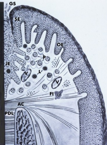 Periodontal probing diagram 2 school of dental medicine for 3501 terrace street pittsburgh pa