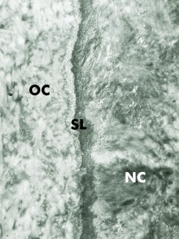 Cementogenesis reparative cementum deutsch diagram 3 for 3501 terrace street pittsburgh pa 15261